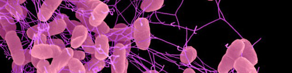 Superbug resistant to ALL antibiotics reaches Europe